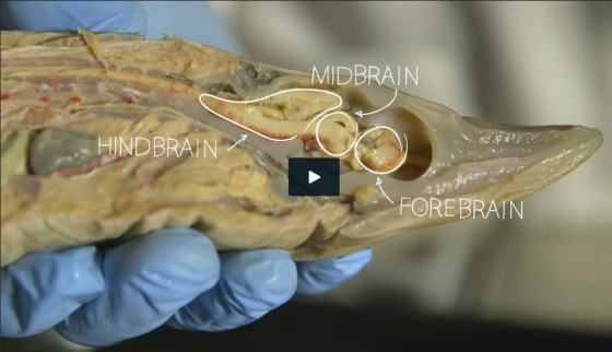 "From the PBS series, ""Your Inner Fish"":  While the human brain may seem exceptional, the truth is that it has some deep similarities with many other animals', including fish. Anatomist Neil Shubin dissects a fish brain and a human brain and shows us how much we have in common with sea-dwelling creatures."